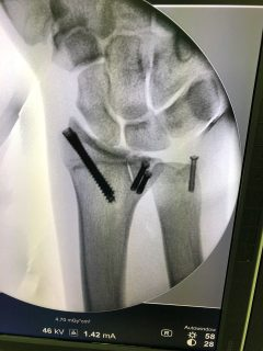 Barreda_injury_2018